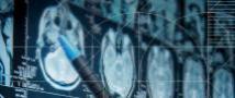לפענת מאות תמונות MRI בכלים אוטומטים המבוססים על שיטות ראיה ממוחשבת