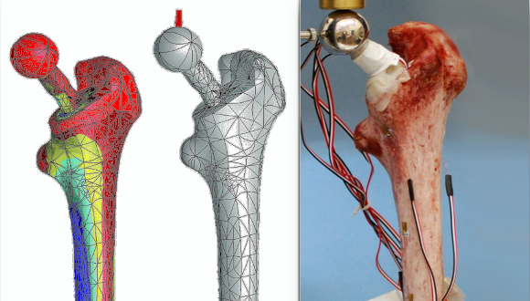 דוגמת ניסוי על עצם ירך עם משתל