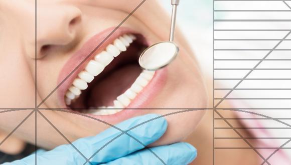 ציפוי שיניים שיגרום לכם לחייך
